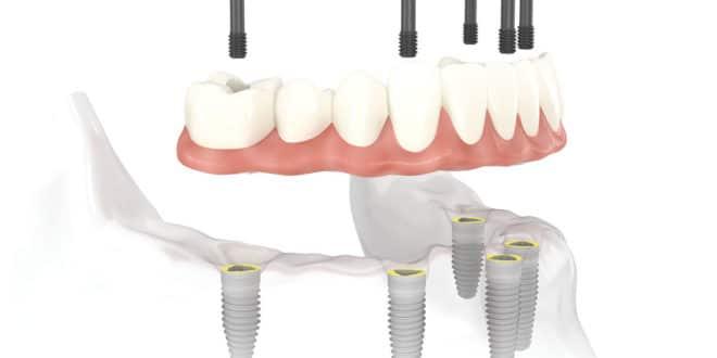 Couronne et bridge dentaire, quels sont les avantages